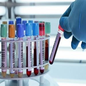 Laboratory - Testing